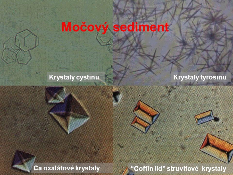 Močový sediment Krystaly cystinu Krystaly tyrosinu