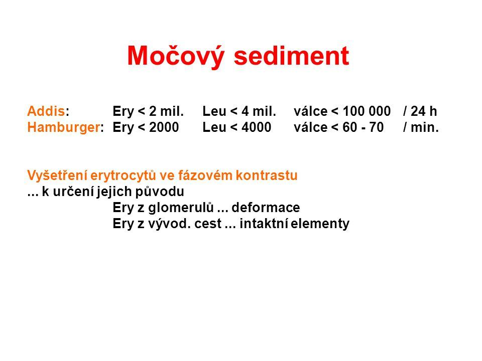 Močový sediment Addis: Ery < 2 mil. Leu < 4 mil. válce < 100 000 / 24 h. Hamburger: Ery < 2000 Leu < 4000 válce < 60 - 70 / min.