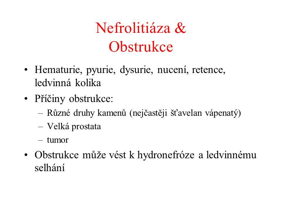 Nefrolitiáza & Obstrukce