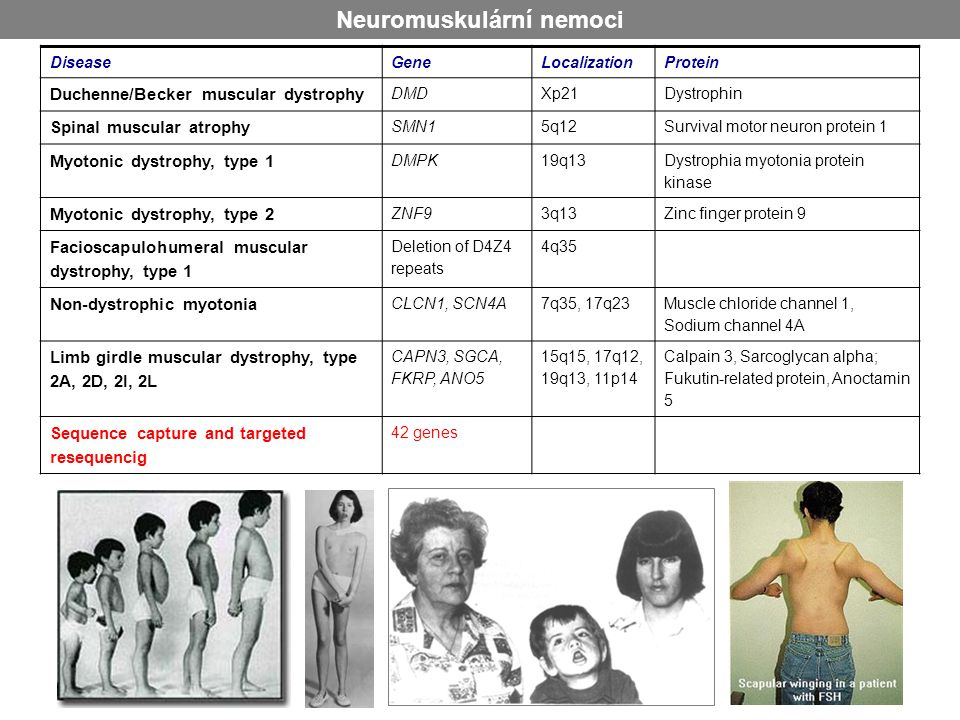 Neuromuskulární nemoci