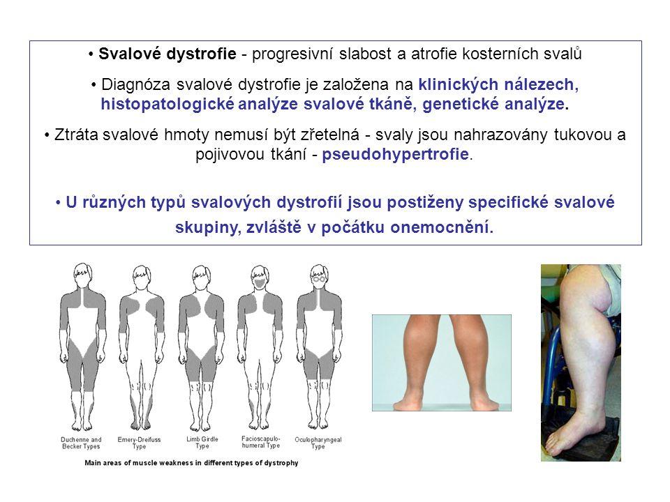 Svalové dystrofie - progresivní slabost a atrofie kosterních svalů