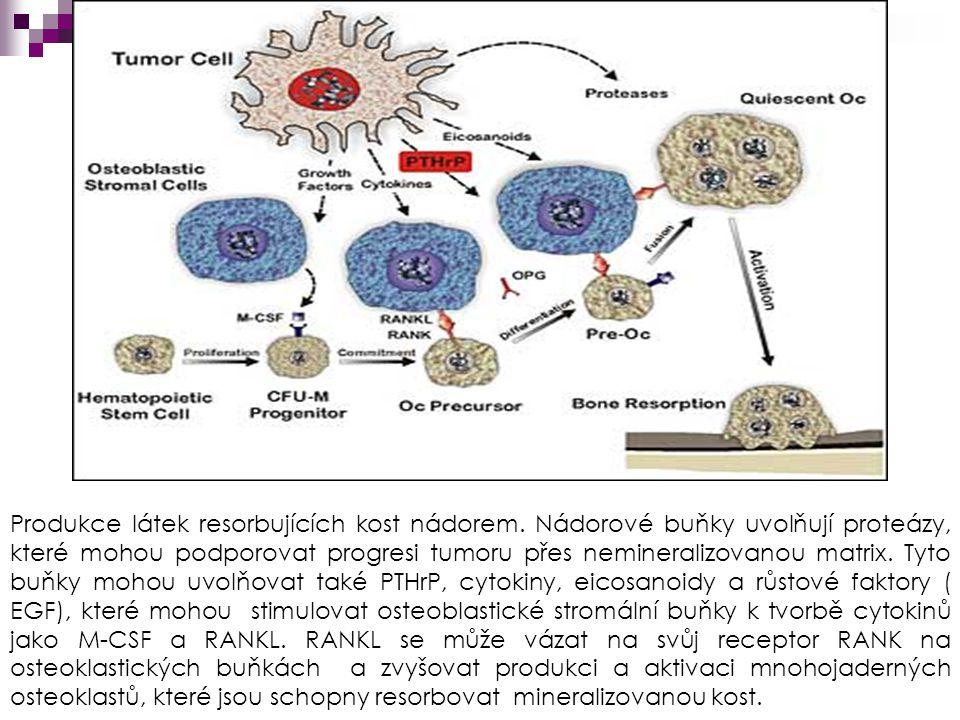 Produkce látek resorbujících kost nádorem