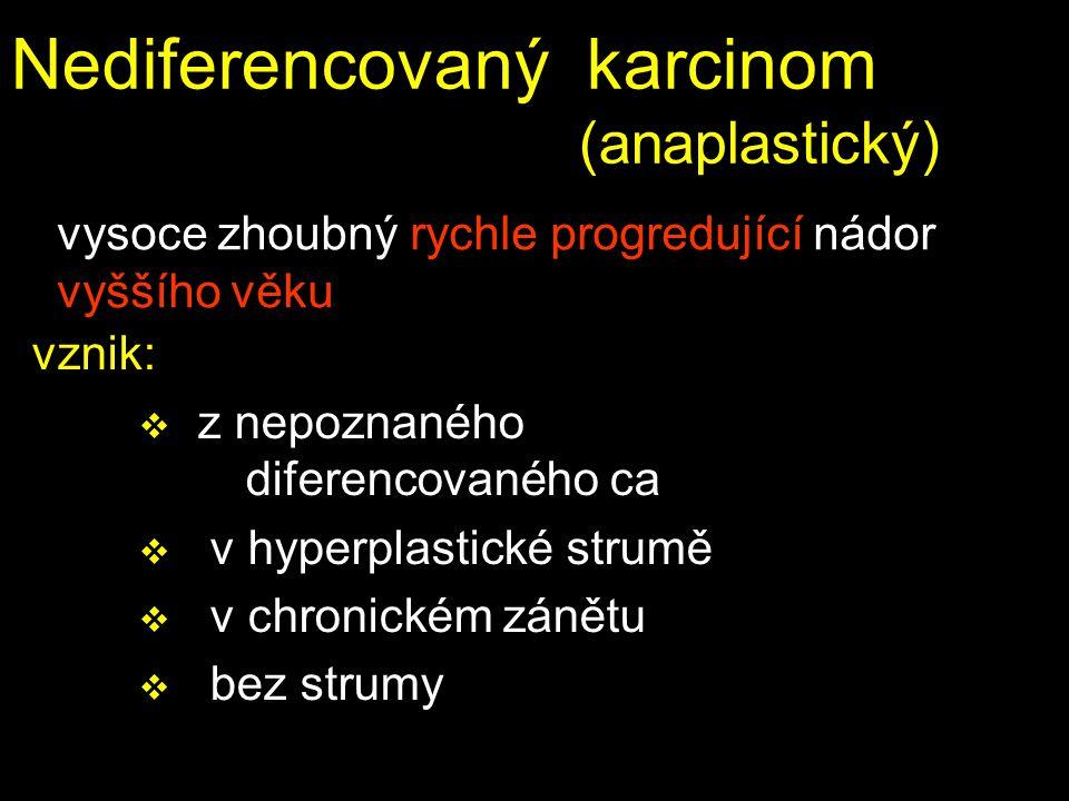 Nediferencovaný karcinom (anaplastický)