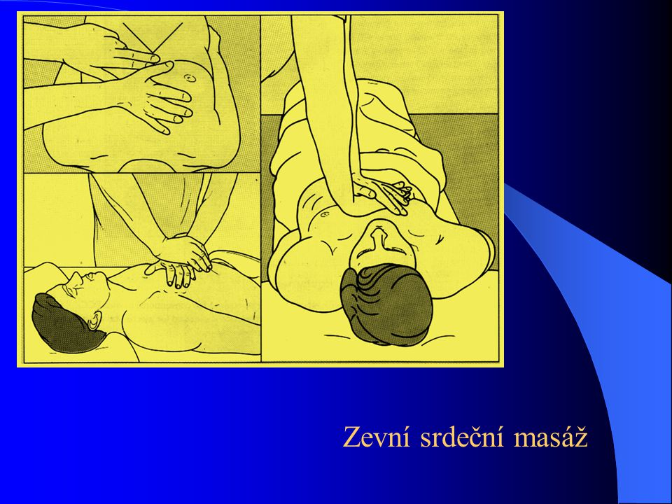Zevní srdeční masáž