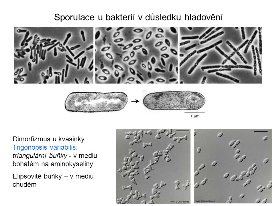 Sporulace u bakterií v důsledku hladovění