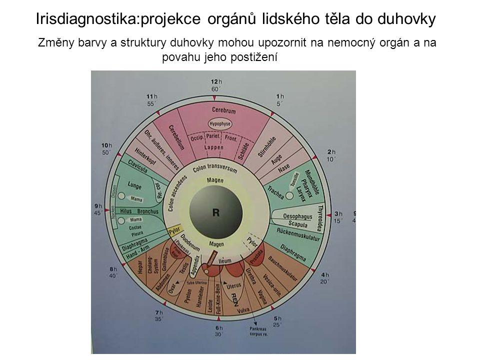 Irisdiagnostika:projekce orgánů lidského těla do duhovky