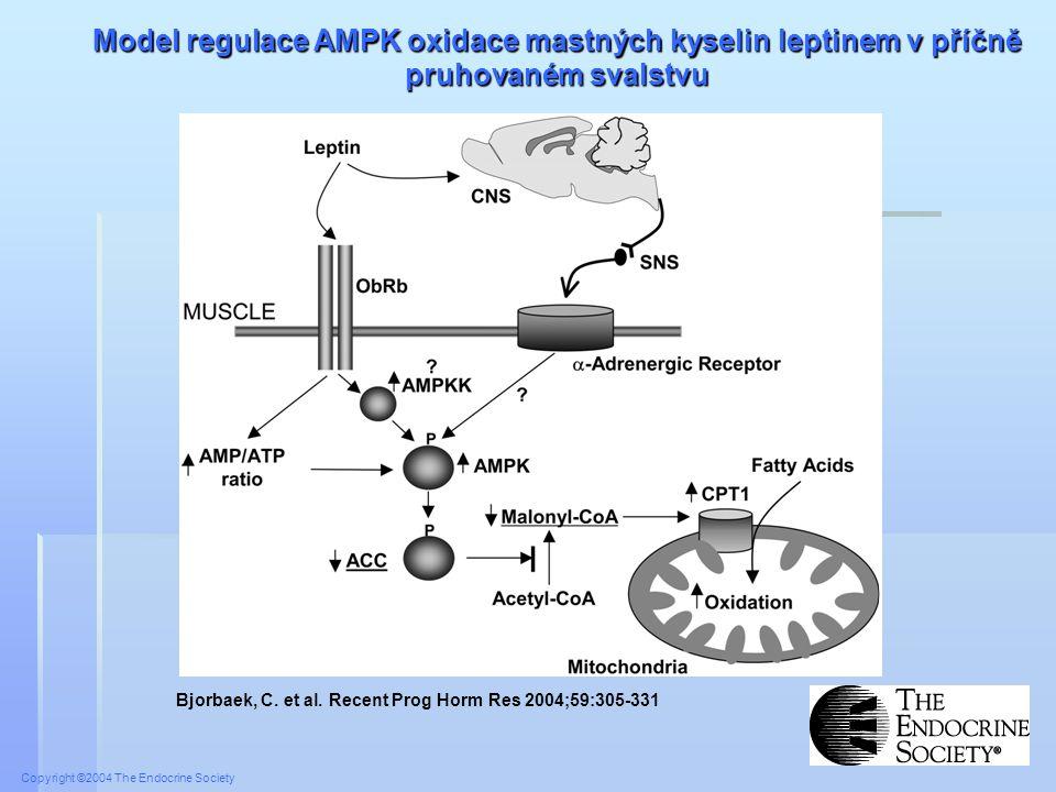 Model regulace AMPK oxidace mastných kyselin leptinem v příčně pruhovaném svalstvu
