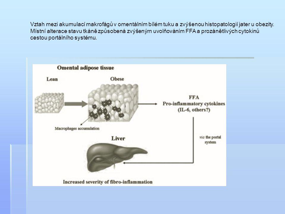 Vztah mezi akumulací makrofágů v omentálním bílém tuku a zvýšenou histopatologií jater u obezity.