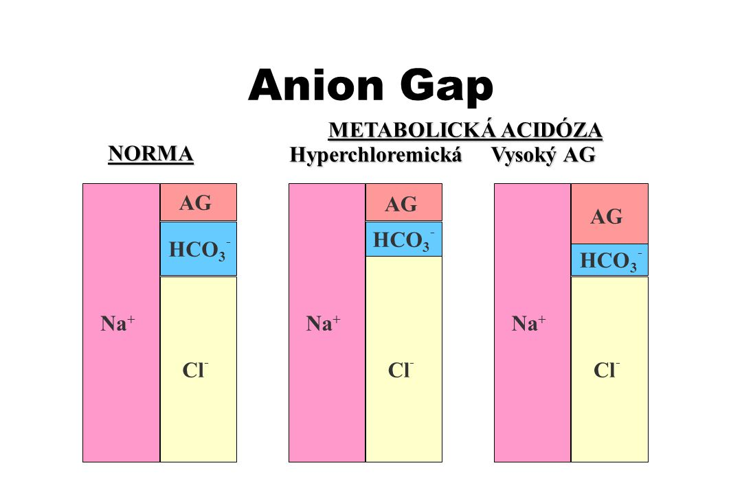 Anion Gap METABOLICKÁ ACIDÓZA NORMA Hyperchloremická Vysoký AG AG AG