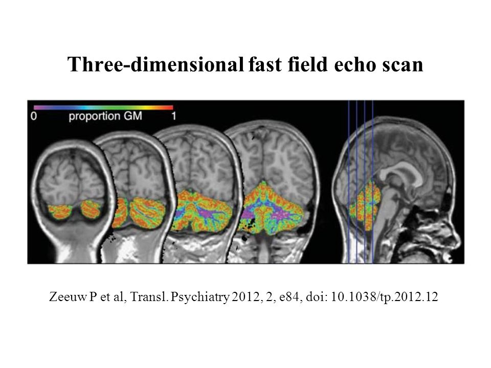 Three-dimensional fast field echo scan