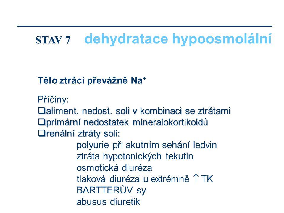 STAV 7 dehydratace hypoosmolální