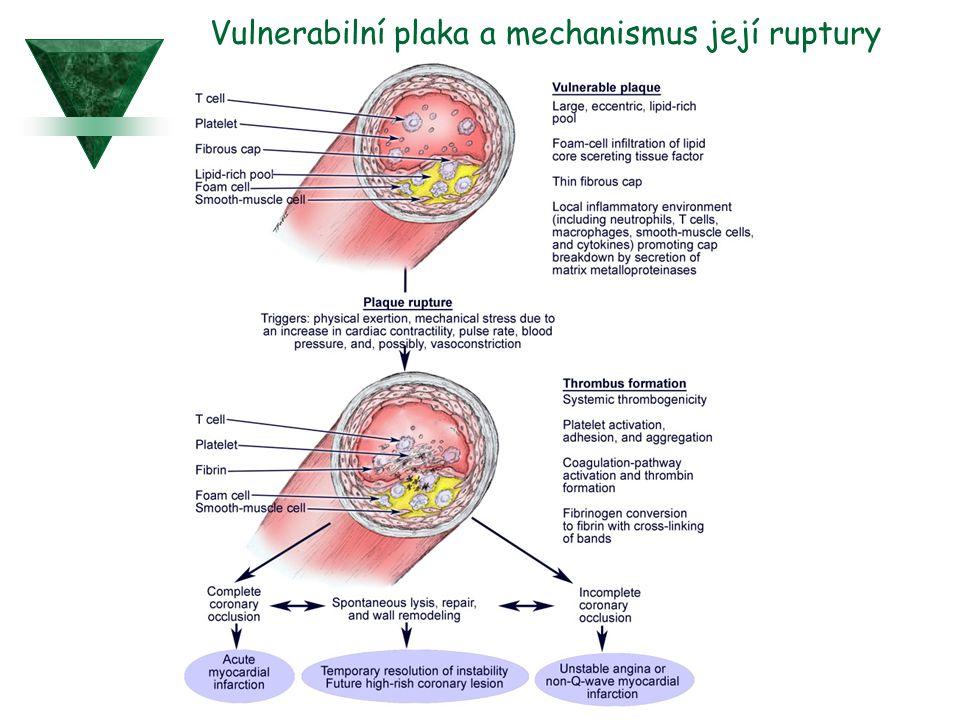 Vulnerabilní plaka a mechanismus její ruptury