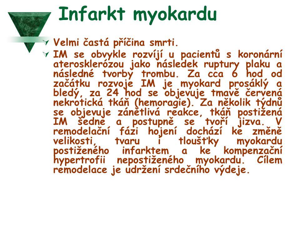 Infarkt myokardu Velmi častá příčina smrti.