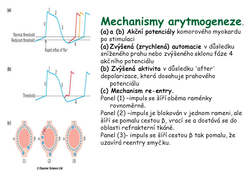 Mechanismy arytmogeneze.