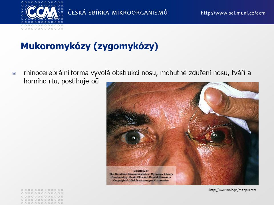 Mukoromykózy (zygomykózy)