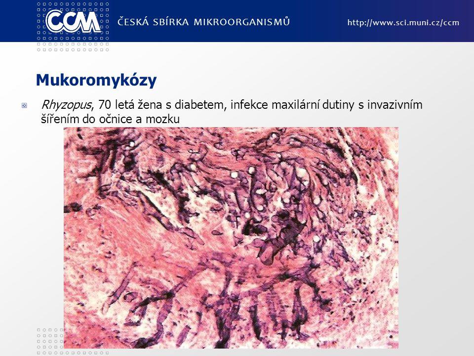 ČESKÁ SBÍRKA MIKROORGANISMŮ http://www.sci.muni.cz/ccm