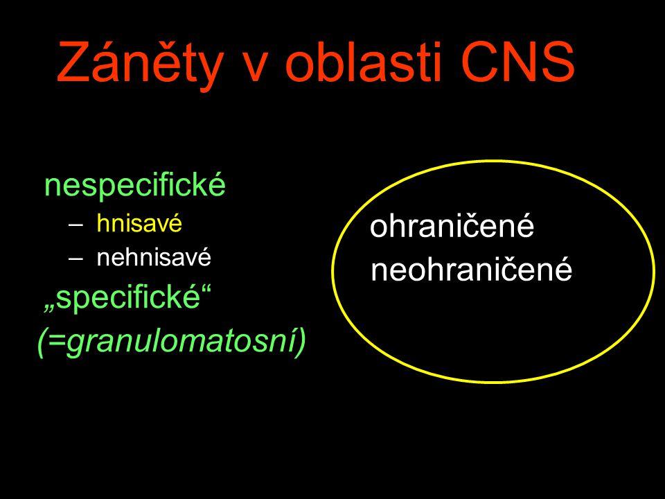 """Záněty v oblasti CNS nespecifické ohraničené """"specifické neohraničené"""