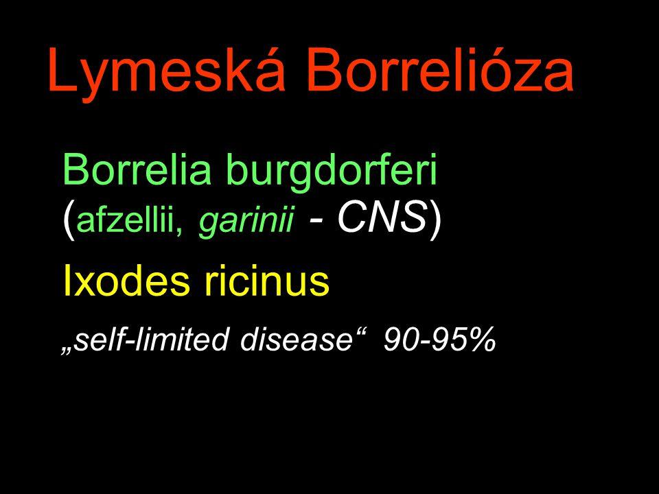 Lymeská Borrelióza Borrelia burgdorferi (afzellii, garinii - CNS)