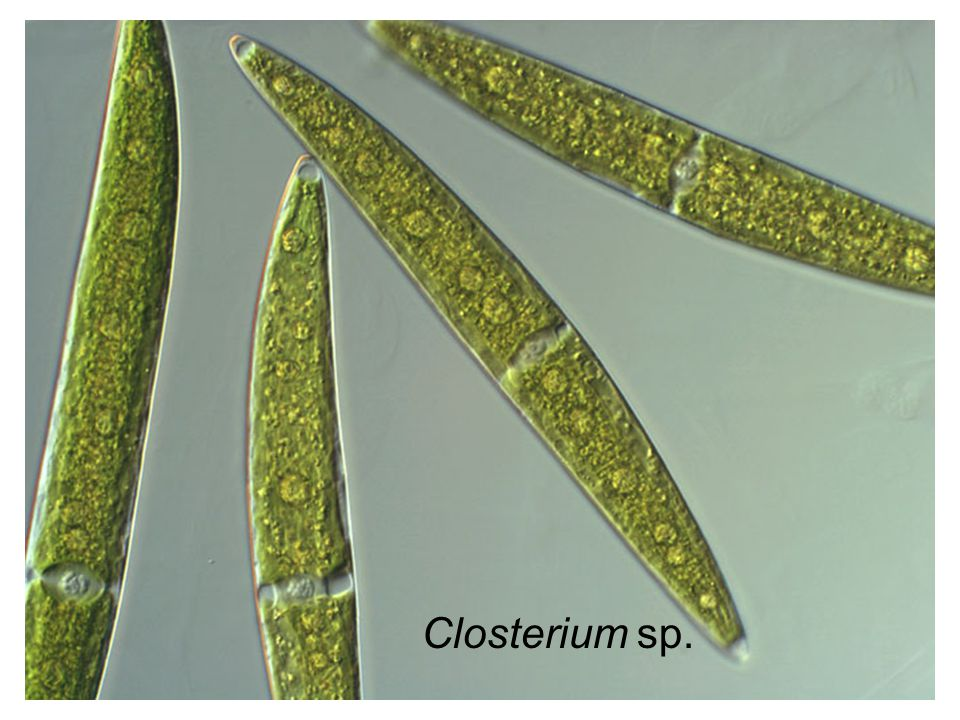 Closterium sp.