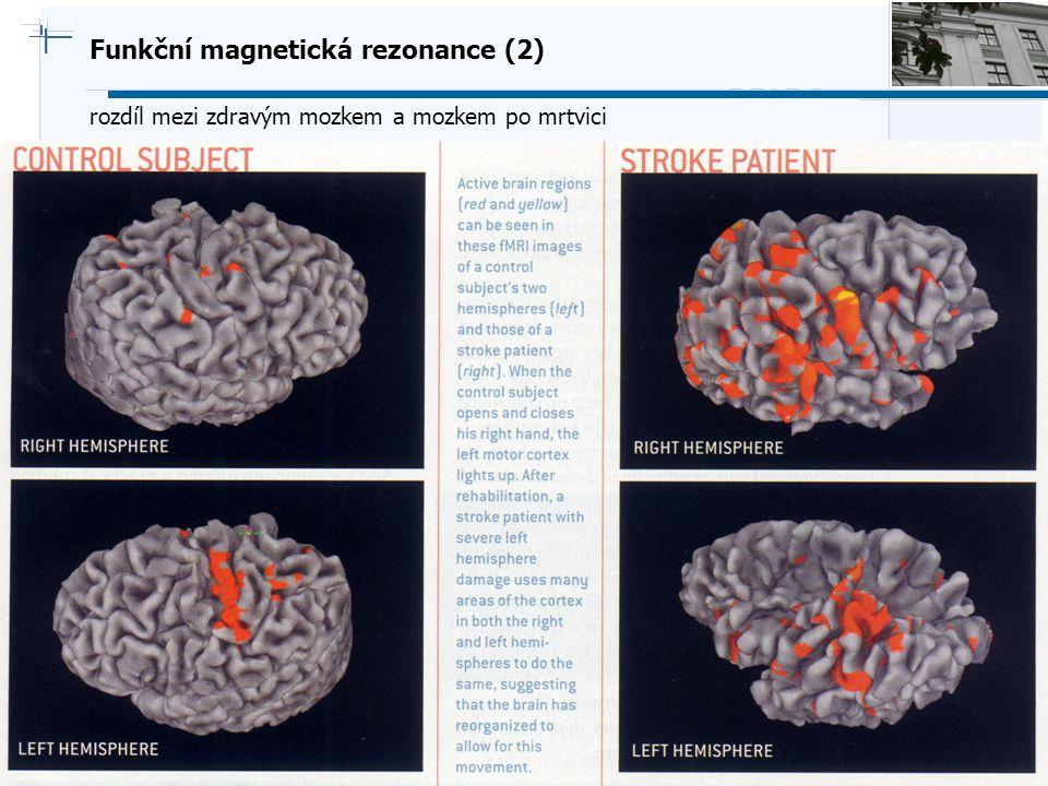 Funkční magnetická rezonance (2)