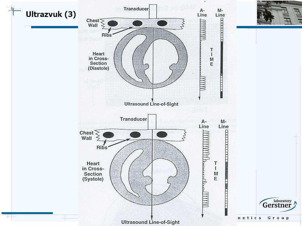 Ultrazvuk (3)