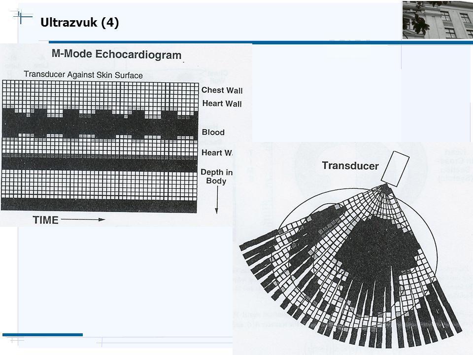 Ultrazvuk (4)