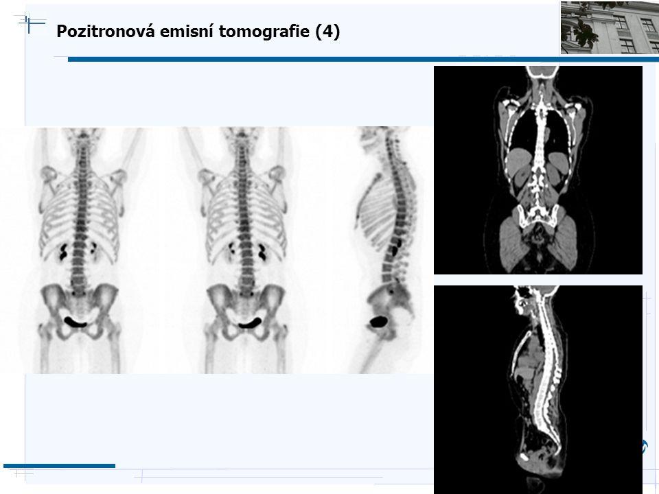 Pozitronová emisní tomografie (4)