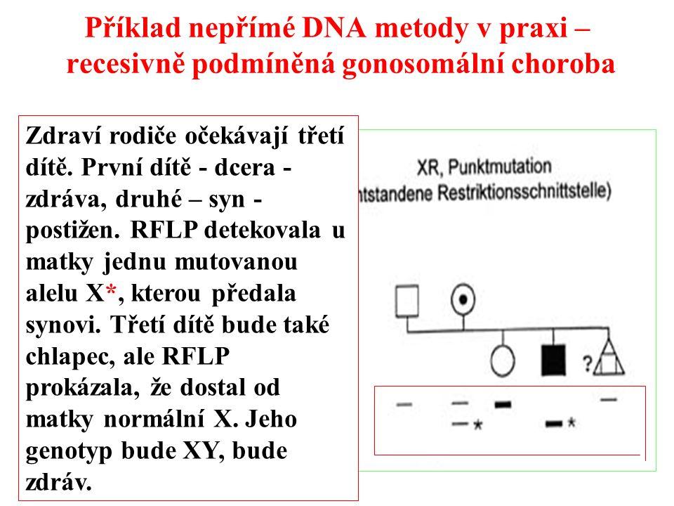 Příklad nepřímé DNA metody v praxi – recesivně podmíněná gonosomální choroba