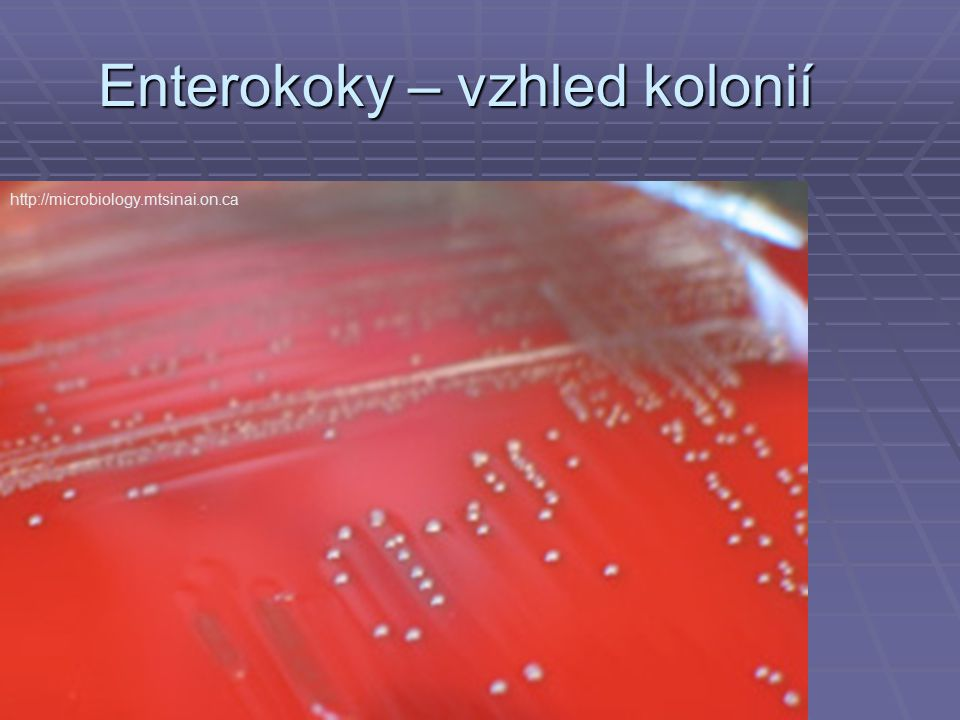 Enterokoky – vzhled kolonií