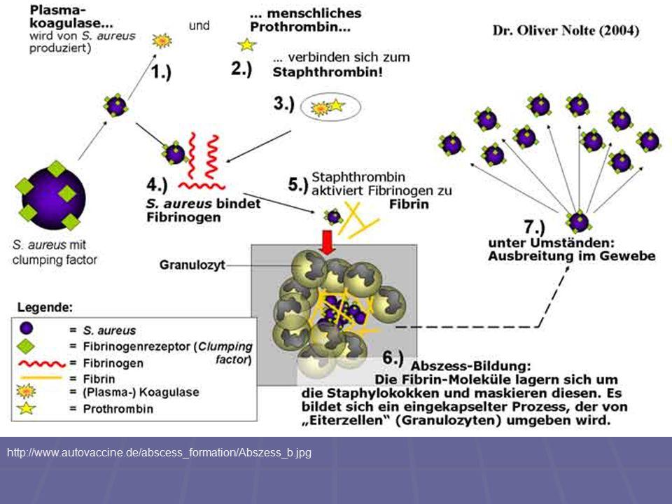 http://www.autovaccine.de/abscess_formation/Abszess_b.jpg