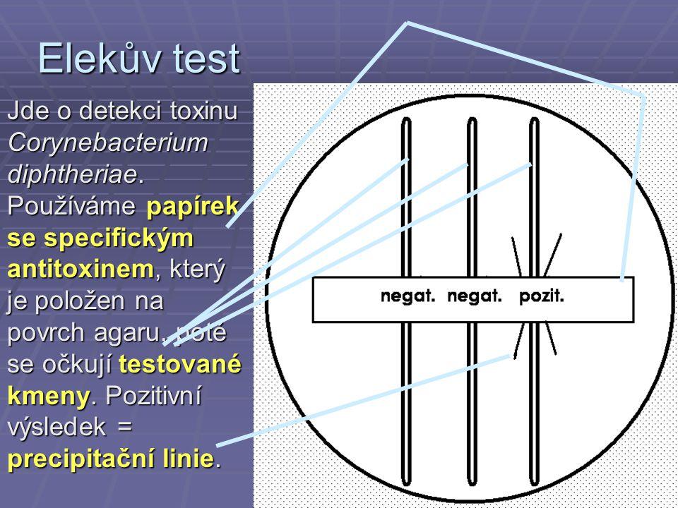 Elekův test