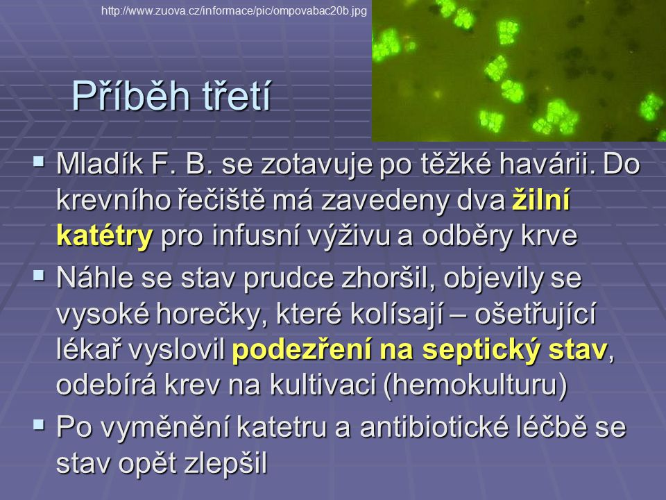 http://www.zuova.cz/informace/pic/ompovabac20b.jpg Příběh třetí.