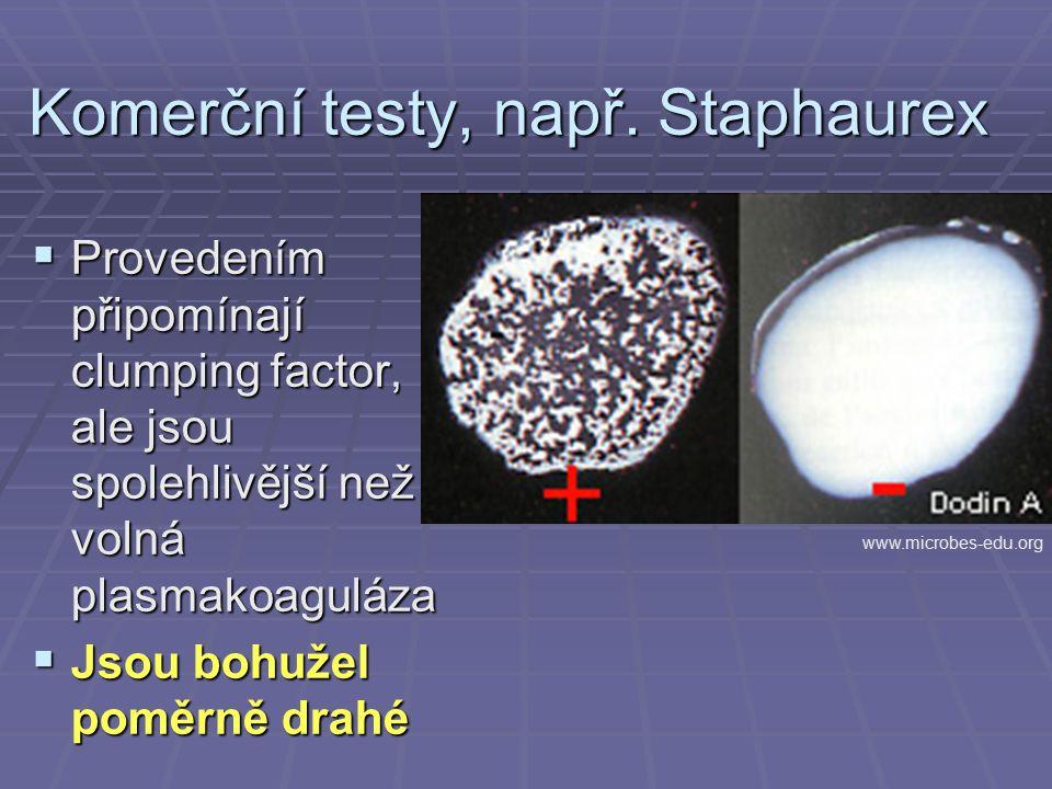 Komerční testy, např. Staphaurex