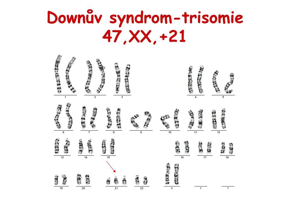 Downův syndrom-trisomie 47,XX,+21