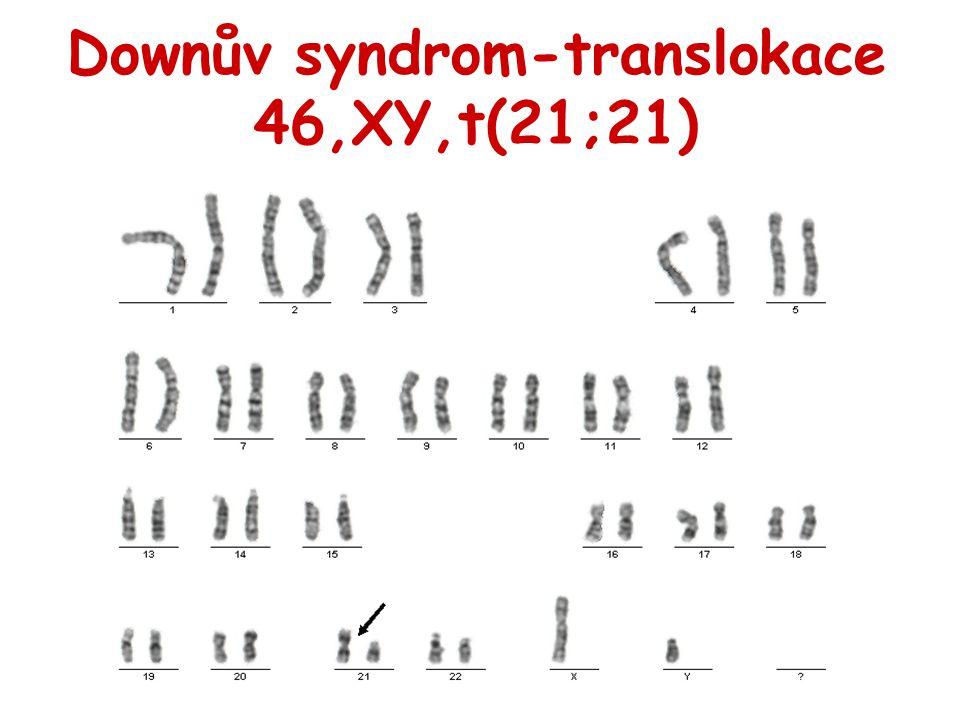 Downův syndrom-translokace 46,XY,t(21;21)