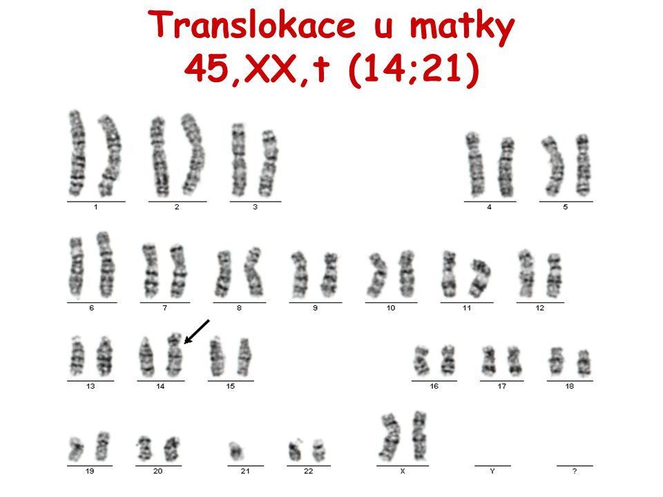 Translokace u matky 45,XX,t (14;21)