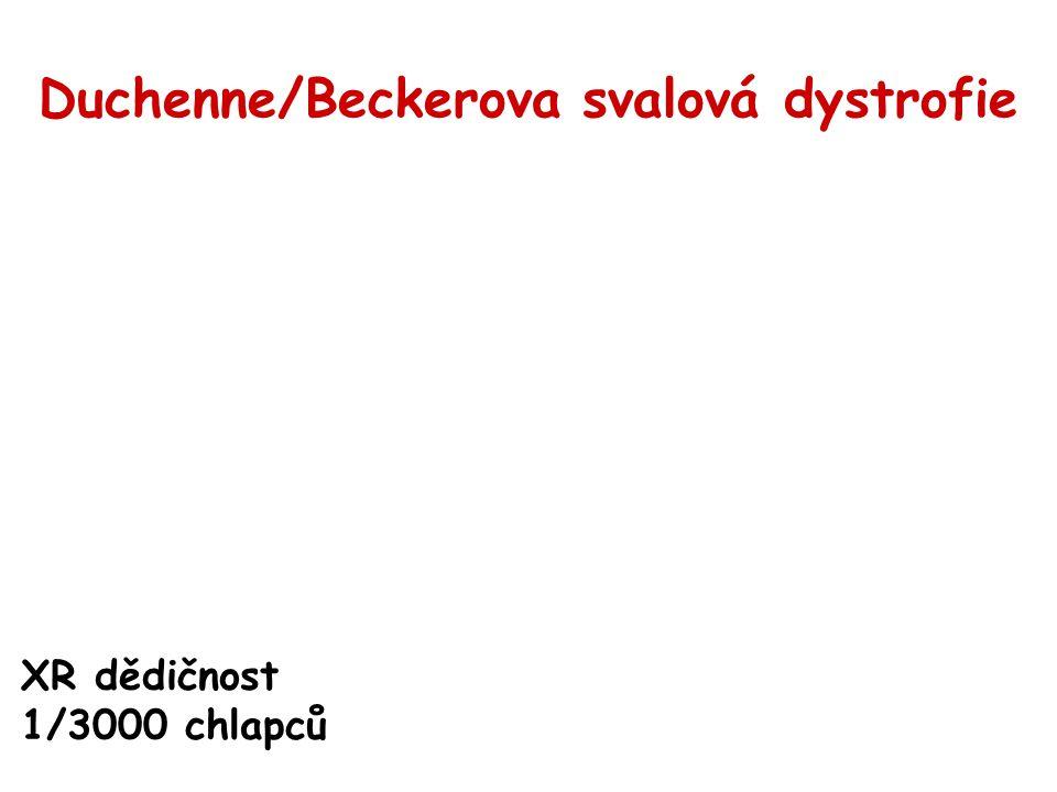 Duchenne/Beckerova svalová dystrofie