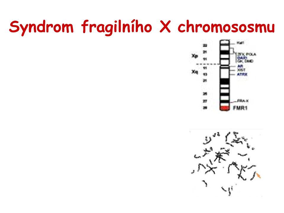 Syndrom fragilního X chromososmu