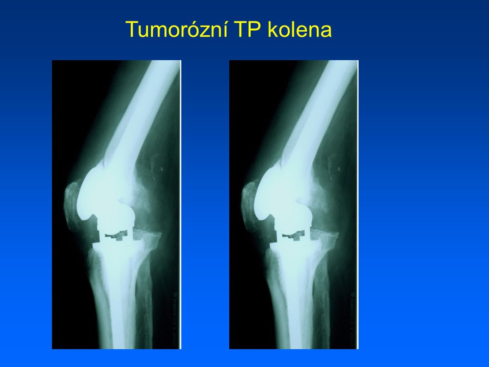 Tumorózní TP kolena