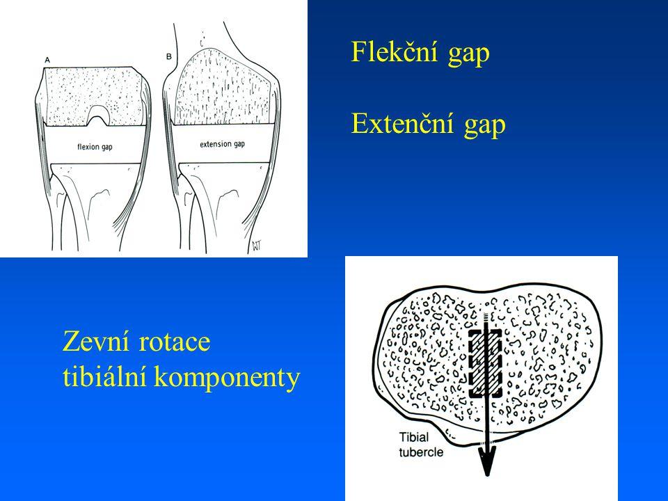 Flekční gap Extenční gap Zevní rotace tibiální komponenty
