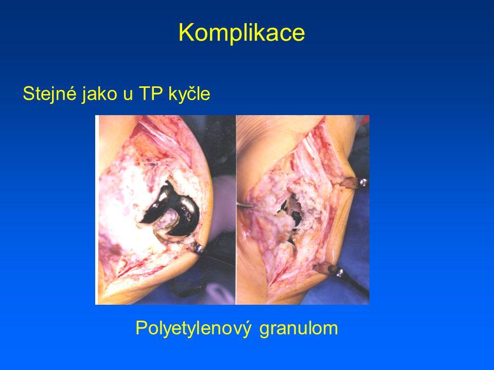 Komplikace Stejné jako u TP kyčle Polyetylenový granulom