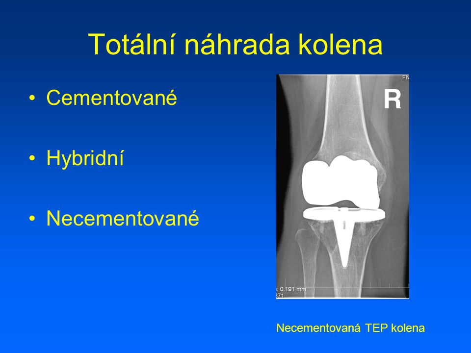 Totální náhrada kolena