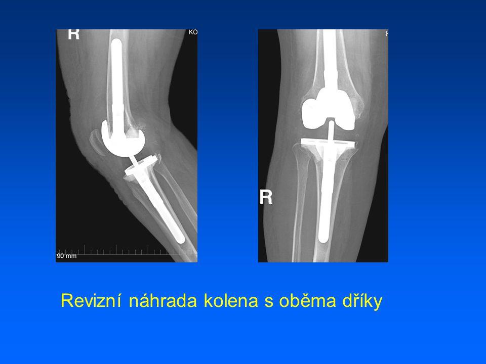 Revizní náhrada kolena s oběma dříky