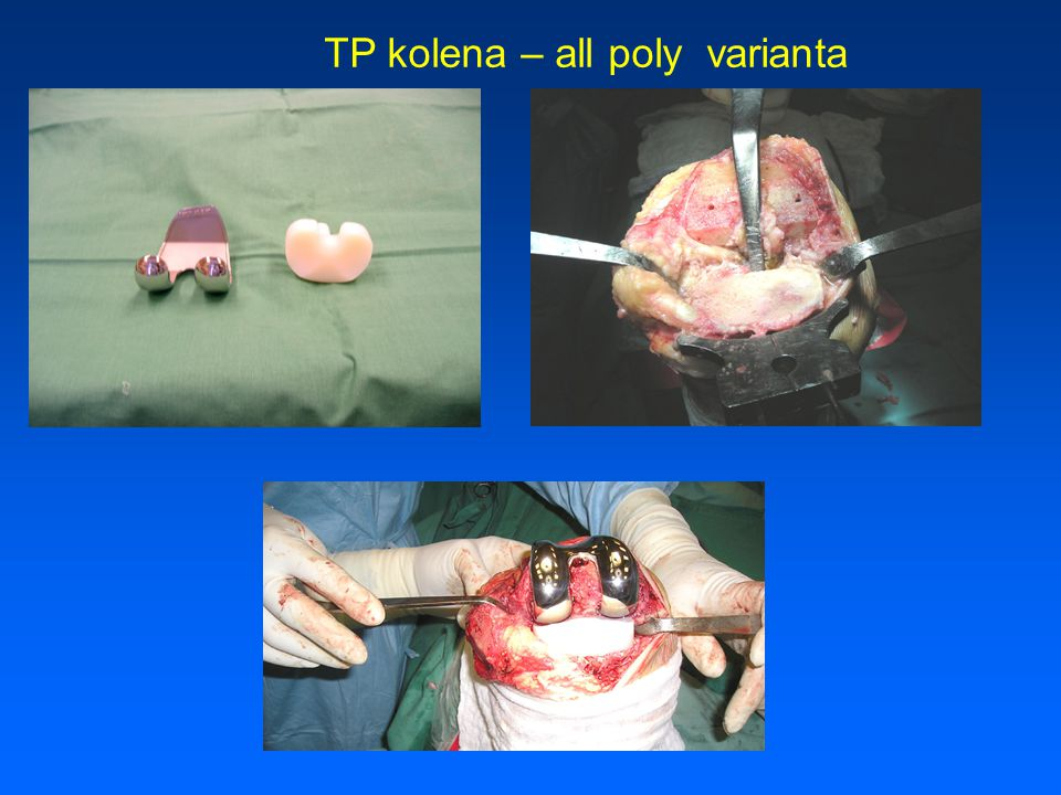 TP kolena – all poly varianta