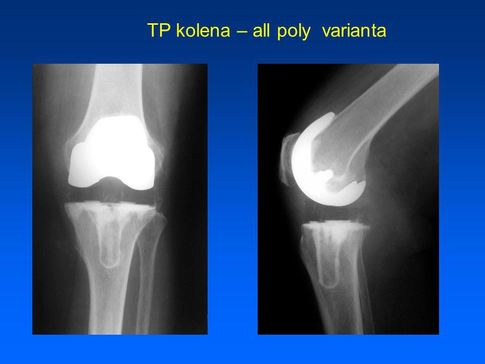 TP kolena – all poly varianta