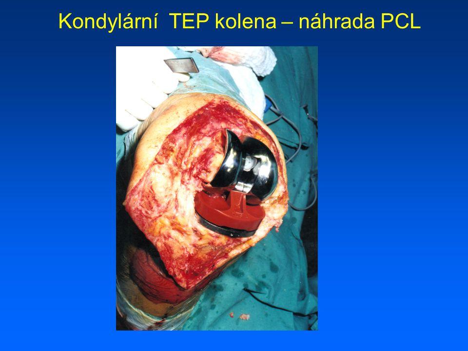 Kondylární TEP kolena – náhrada PCL