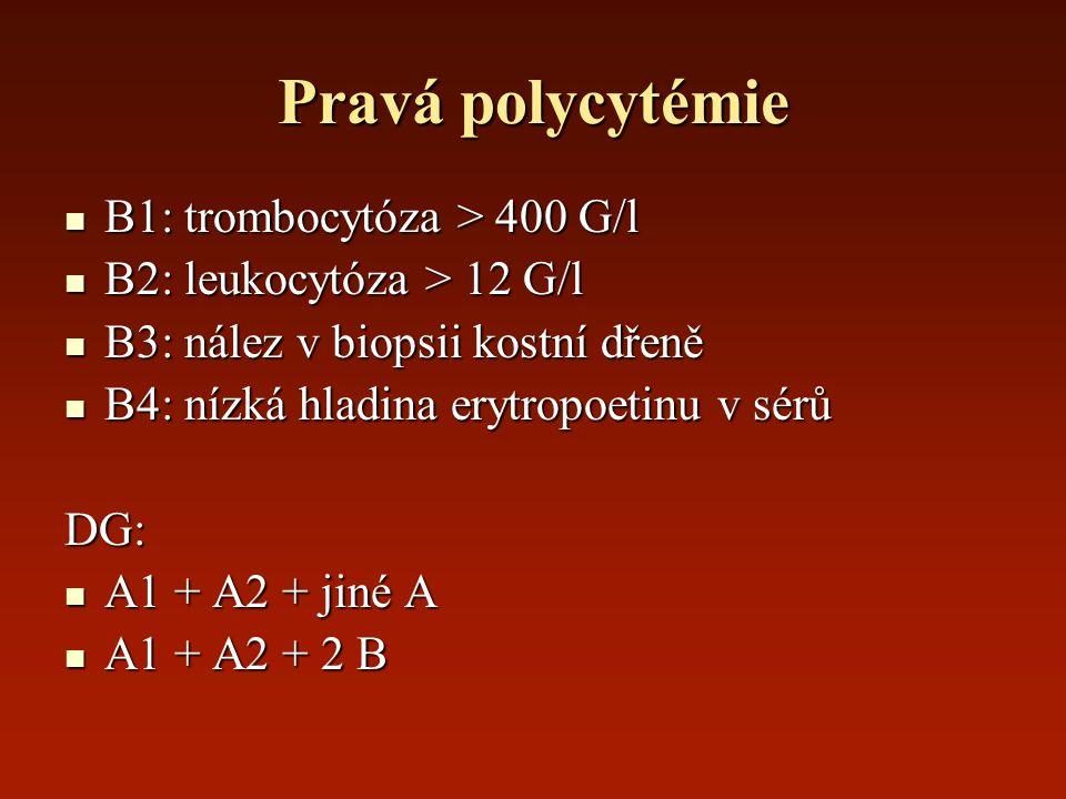 Pravá polycytémie B1: trombocytóza > 400 G/l
