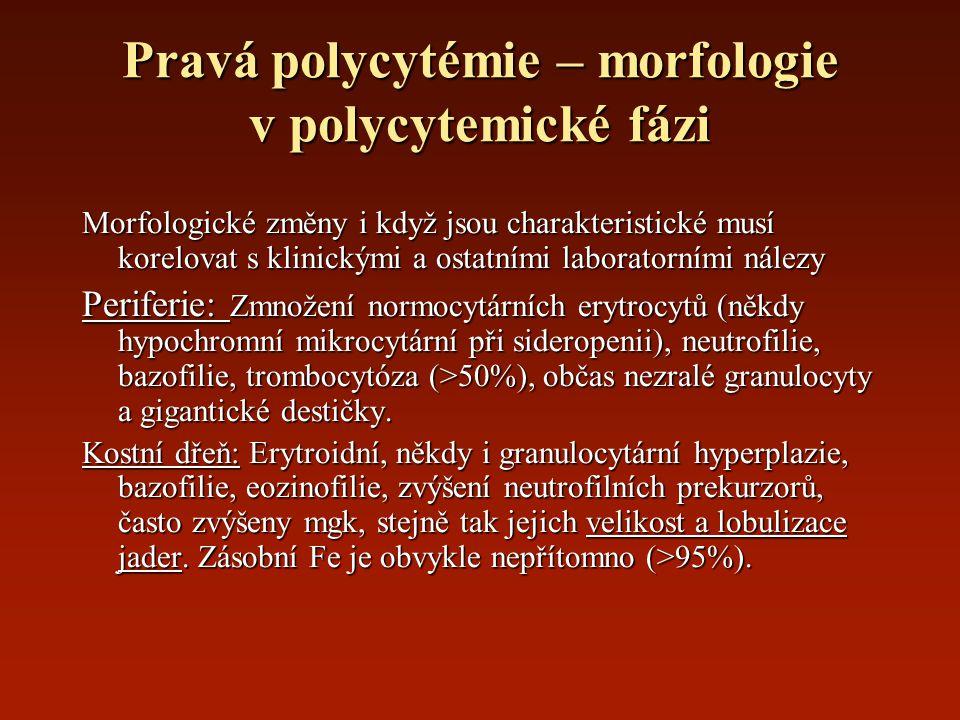 Pravá polycytémie – morfologie v polycytemické fázi