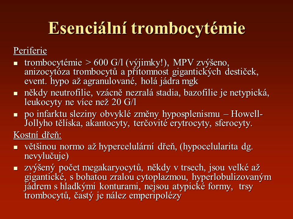 Esenciální trombocytémie