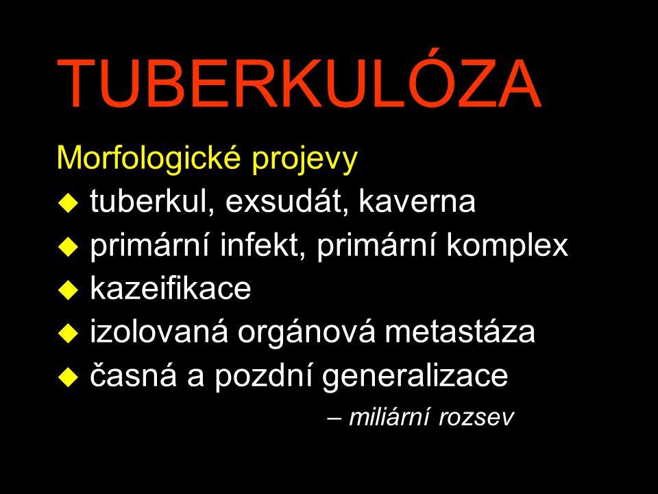 TUBERKULÓZA Morfologické projevy tuberkul, exsudát, kaverna